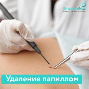 Радиохирургический метод удаления папиллом